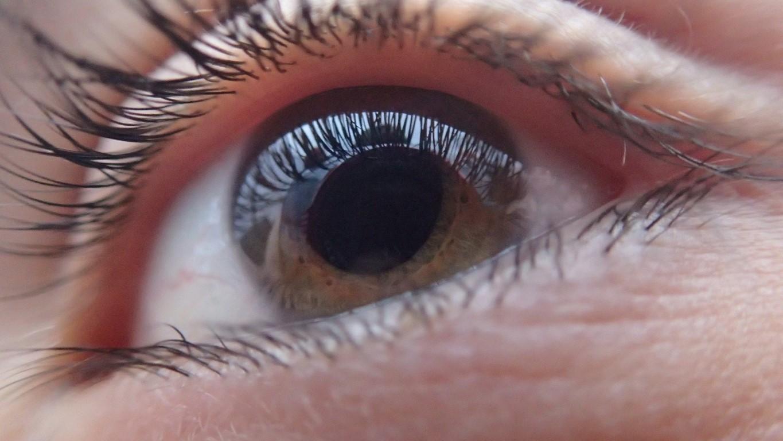 Eye Strain